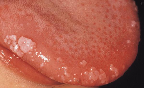 hpv virus na jeziku)