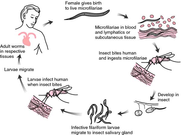 define helminth medical term)
