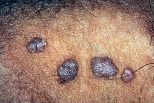 CE SUNT VERUCILE GENITALE (negi genitali, condiloame)? – Ginmed