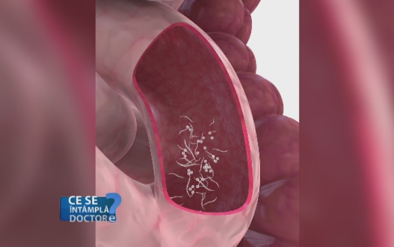 Boliile parazitare la copii | Blue Life Medical Center