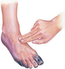 un ulcer între degetele de la picioare)