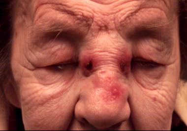Inverted papilloma symptoms medscape.