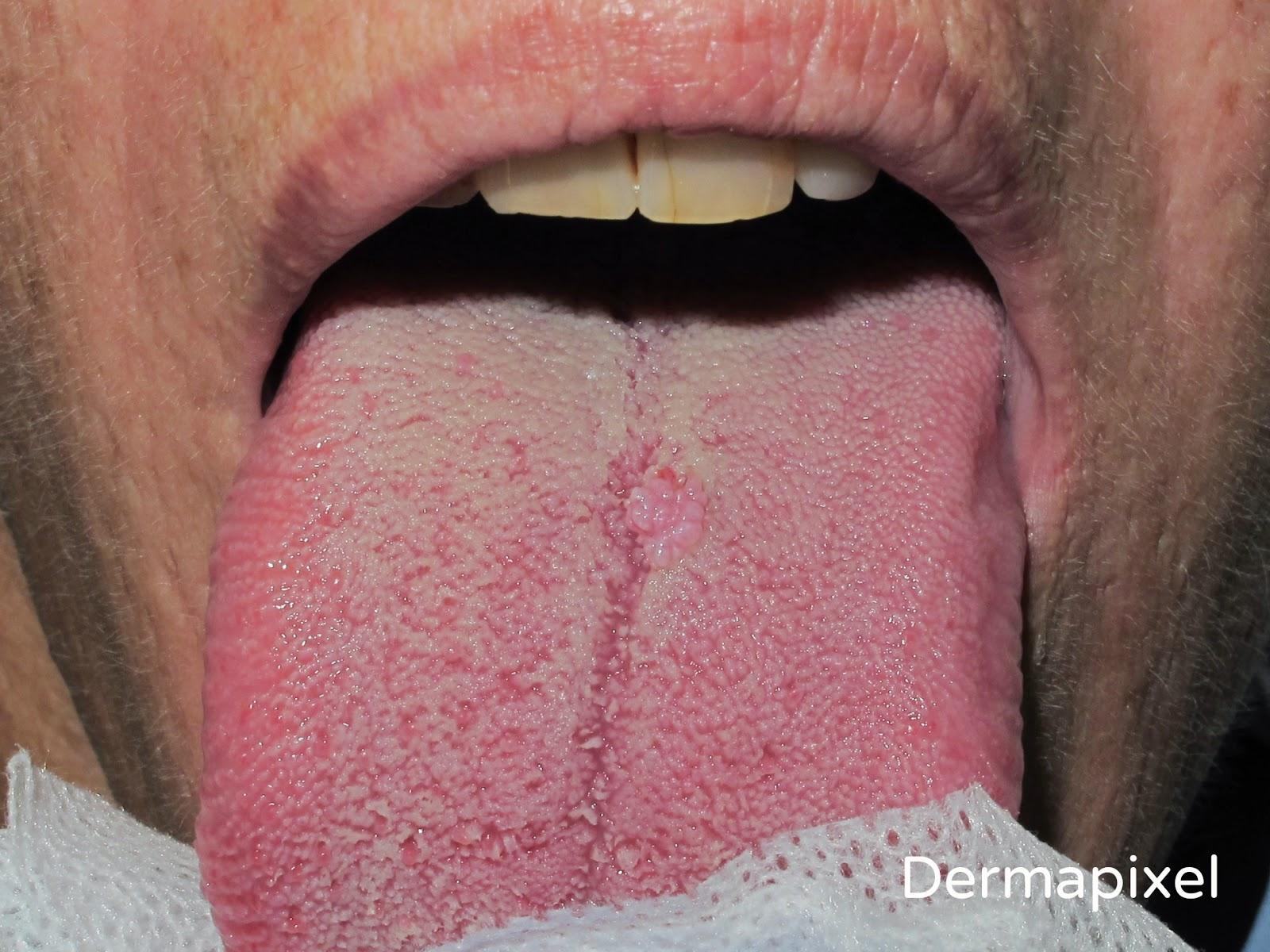que es papiloma de lengua