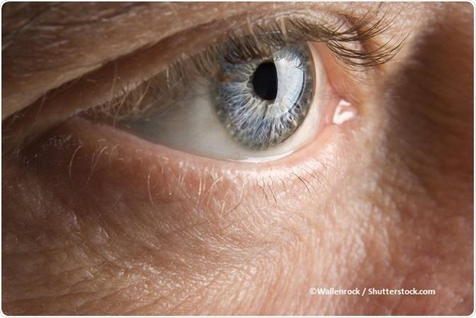 papilloma occhio sintomi)
