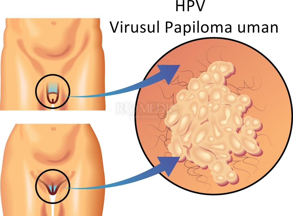 Infecţia cu HPV la bărbaţi