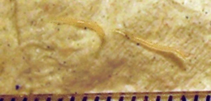 paraziti simptome de tratament