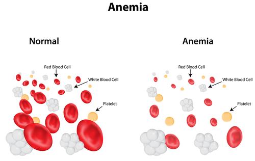 anemie stari
