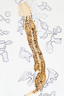 cum arată viermii la copii? antihelmintic pentru pastile umane