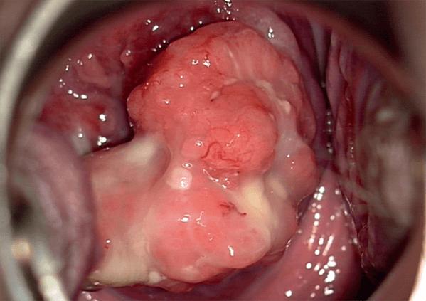 Lesion papillomavirus et grossesse.