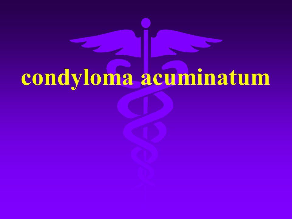 Condyloma acuminata hpv, Parteneri: Condyloma acuminata definition