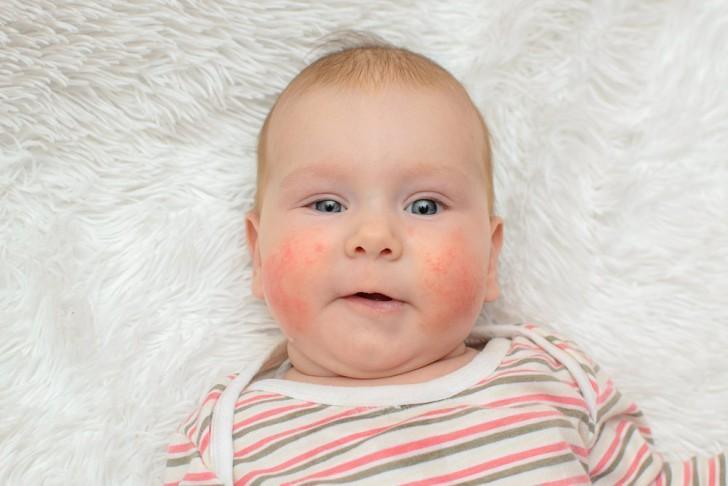 erupții pe copilul papa cu viermi)