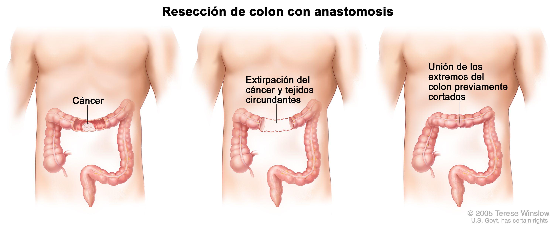 cancer de colon nivel 3)