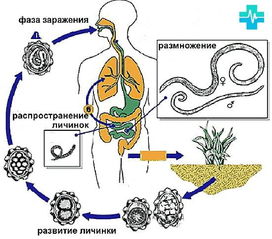 localizarea diphildobothriasis în organism