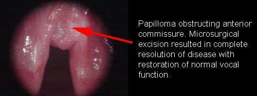 juvenile papilloma larynx cum să tratezi un papilom inflamat