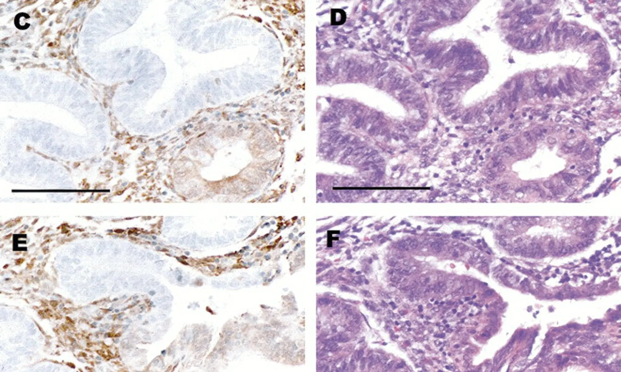 endometrial cancer pten aparat de detoxifiere prin talpi pret