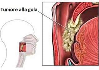 papilloma benigno alla gola)