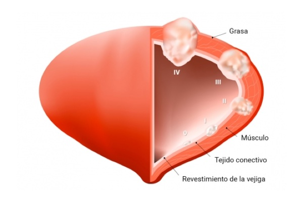 Ce trebuie sa stim despre cancerul de prostata - Cancer de prostata hematuria