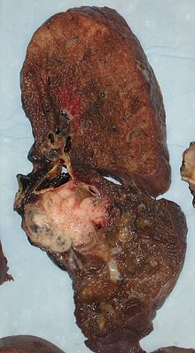 Lobectomia – operatia de indepartare a unui singur lob pulmonar | triplus.ro
