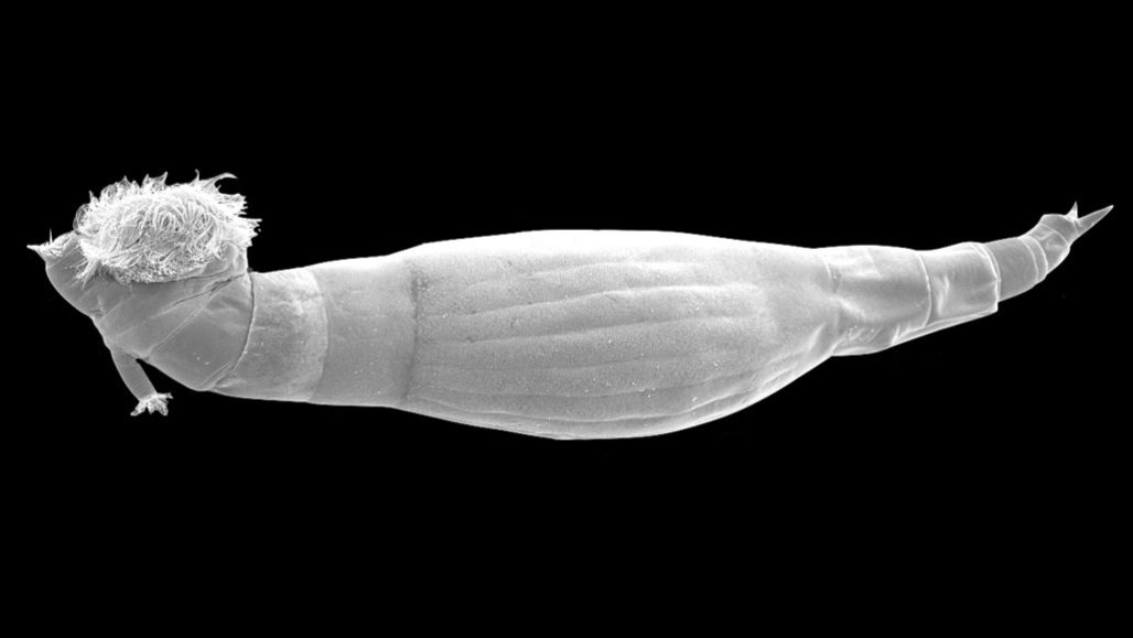 schistosomiasis worm type)