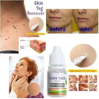creams for hpv warts)