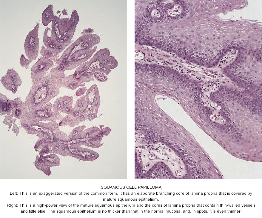 squamous papilloma gross