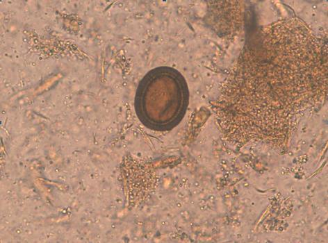 oua de paraziti in scaun