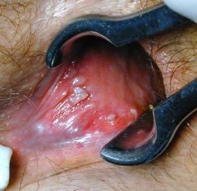 papillomavirus maladie venerienne)