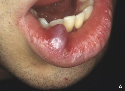 papilloma frenulo labiale superiore