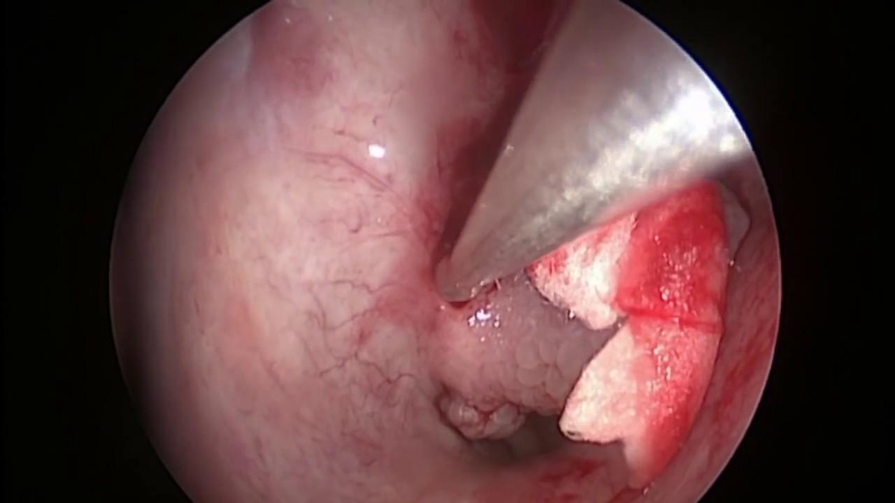 virus del papiloma nariz