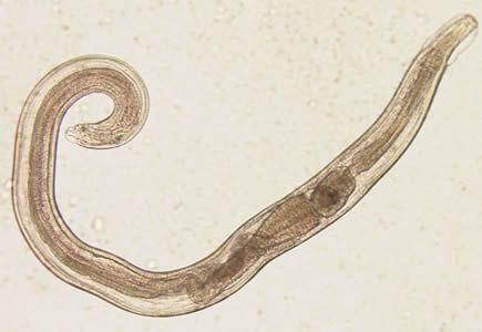 oxyuris vermicularis que es)