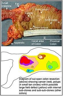 ICD C Tumora maligna colon , fara precizare — Lista Medicamentelor Mediately