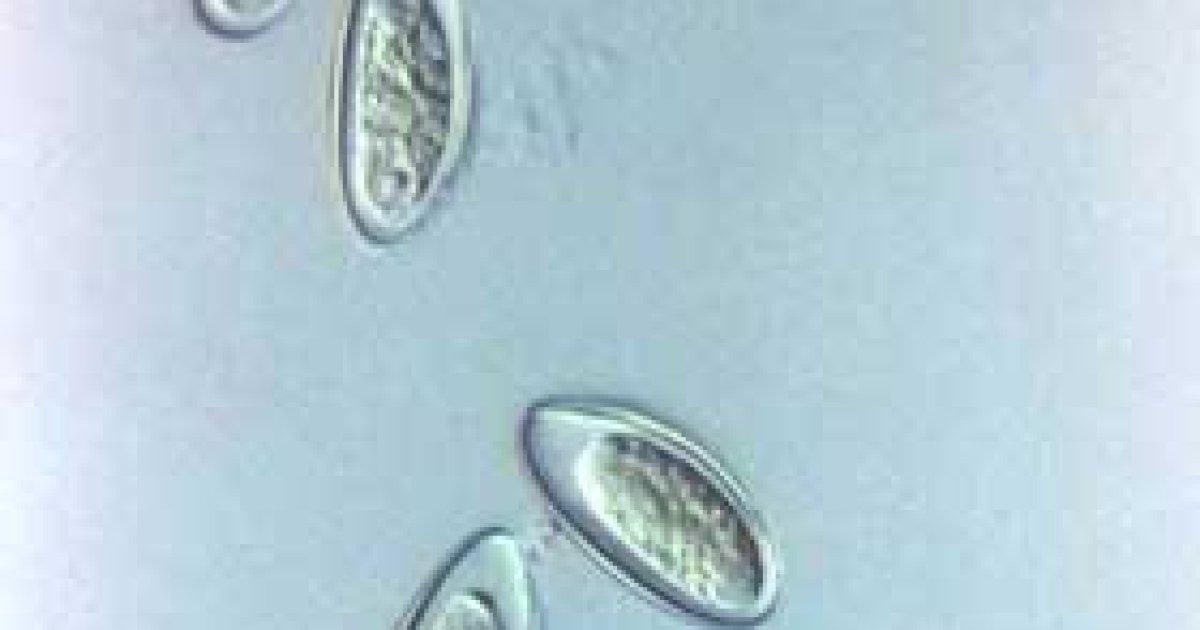 ouă de scaun și imagini parazite)