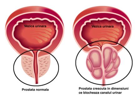 Negi genitali (condiloame, veruci) – cauze, diagnostic, tratament   Ginecologie   Ghid de boli