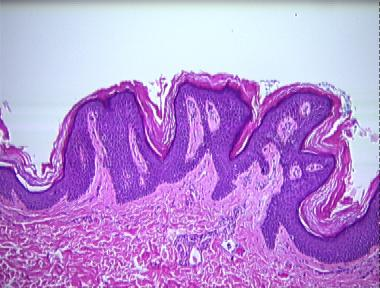Confluent and reticulated papillomatosis pathology Descrierea speciilor de vierme