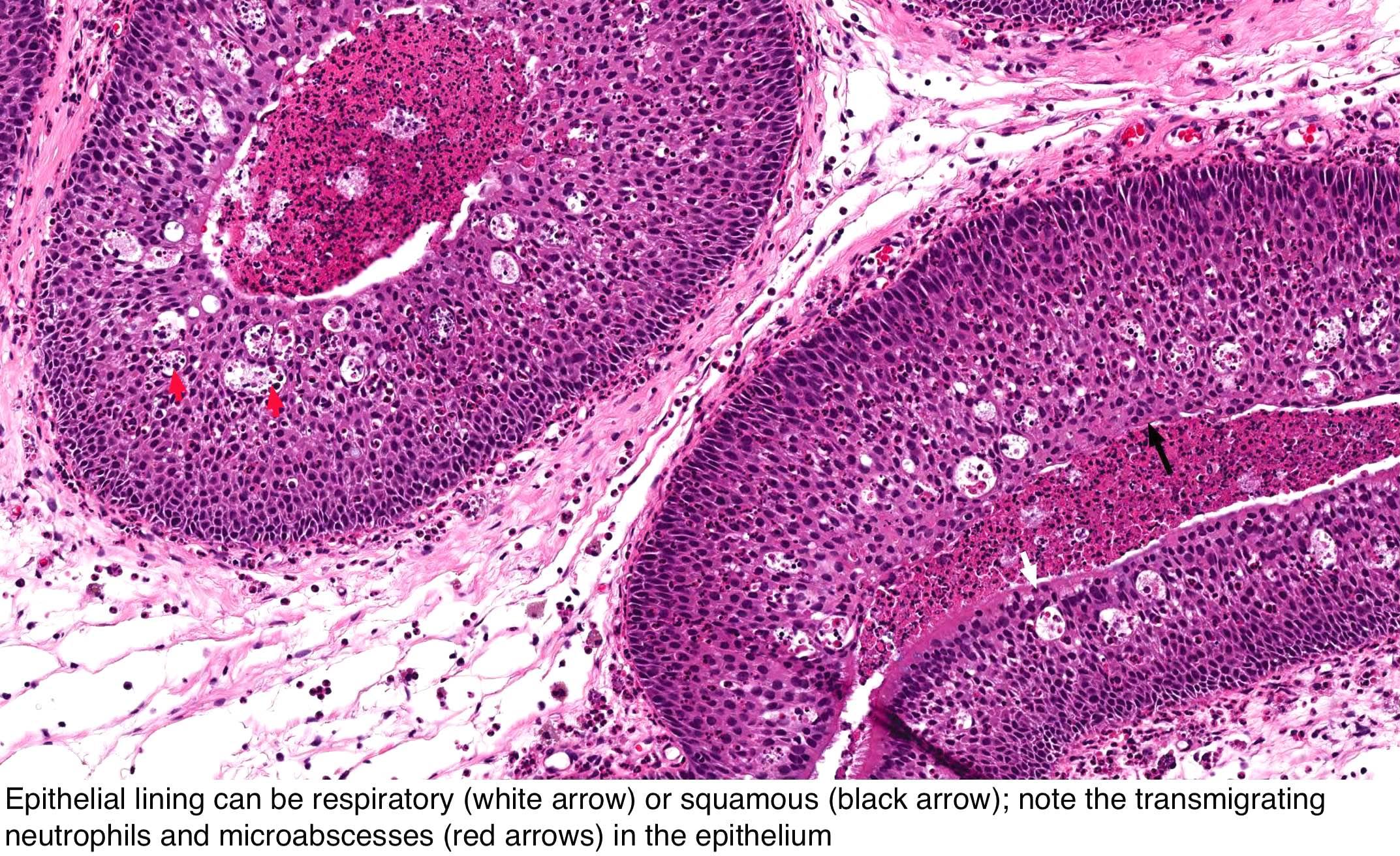 papilloma squamous metaplasia