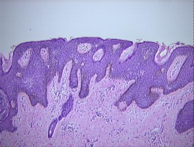reticulated papillomatosis pathology