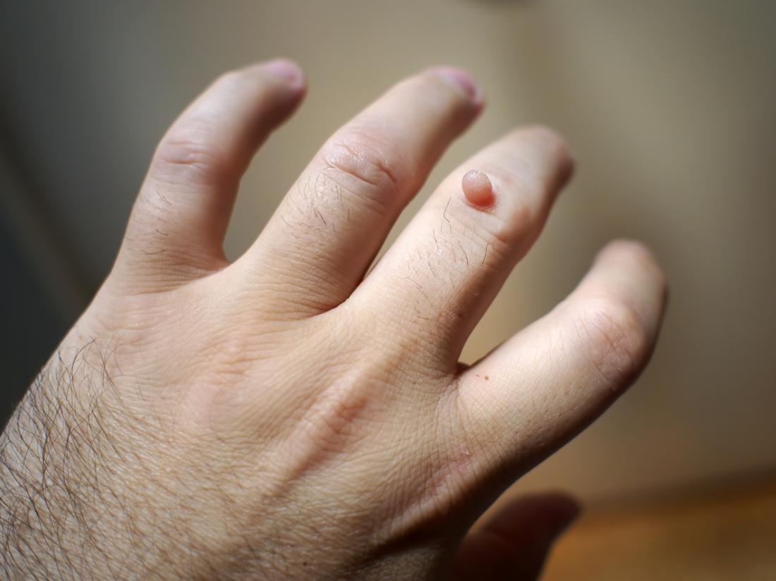Warts on skin reason. Human Papillomavirus - HPV - Nucleus Health benign cancer in breast