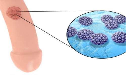 Papilloma virus come si manifesta nell uomo - Hpv uomo come si manifesta