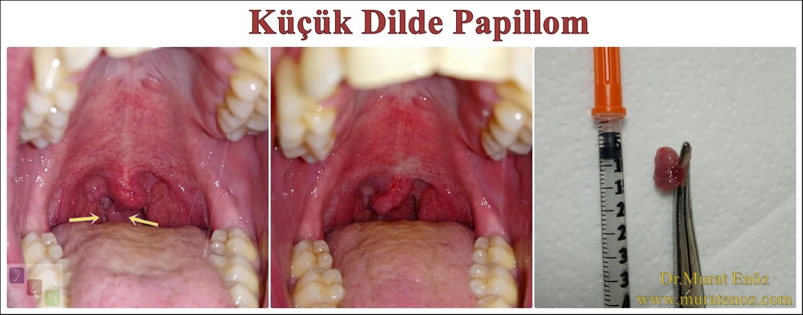 papillomavirus uvula)