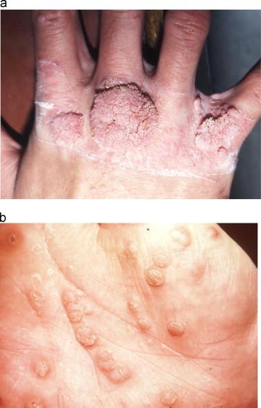 cancer prostate feminin ce sunt papiloame pe piele