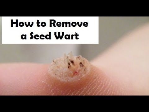 Warts on foot how to remove