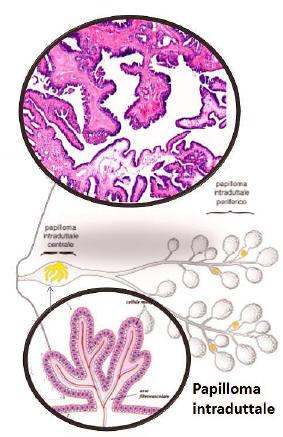 papilloma intraduttale tumore)
