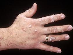human papillomavirus is warts)