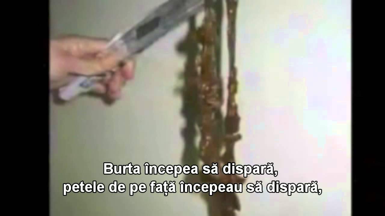 clisme pentru curățarea intestinelor de paraziți)