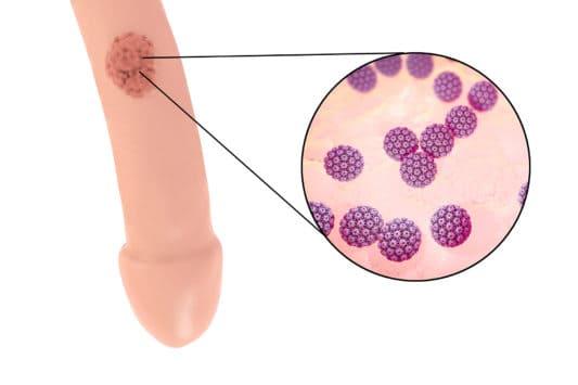 papillomavirus traitement chez l homme)