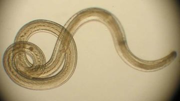 Paraziții intestinali: tratamente naturiste