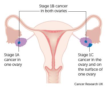 simptome cancer ovarian stadiul 4)