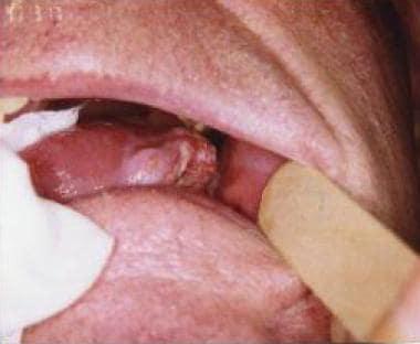 Donate for Gloribelle Ortiz Tongue Cancer