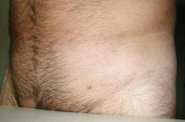negi genitali in sarcina forum