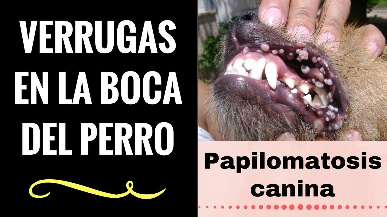 colonizzazione papilloma virus)
